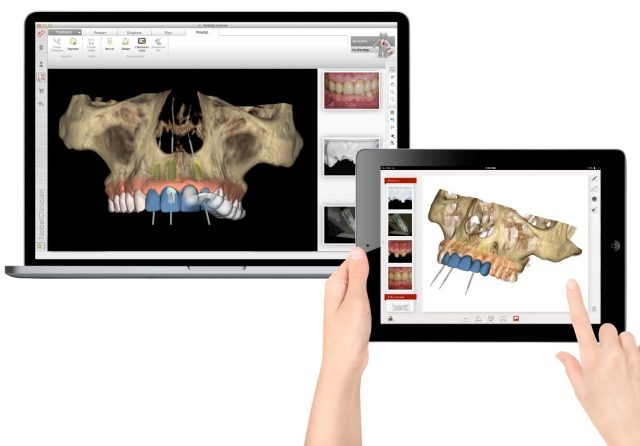 Implantologia Nobel Clinician Mira Design
