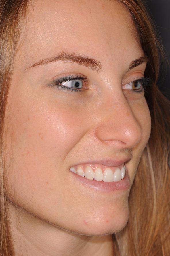 Chiara - Cementazione Additional Venners Mira Design