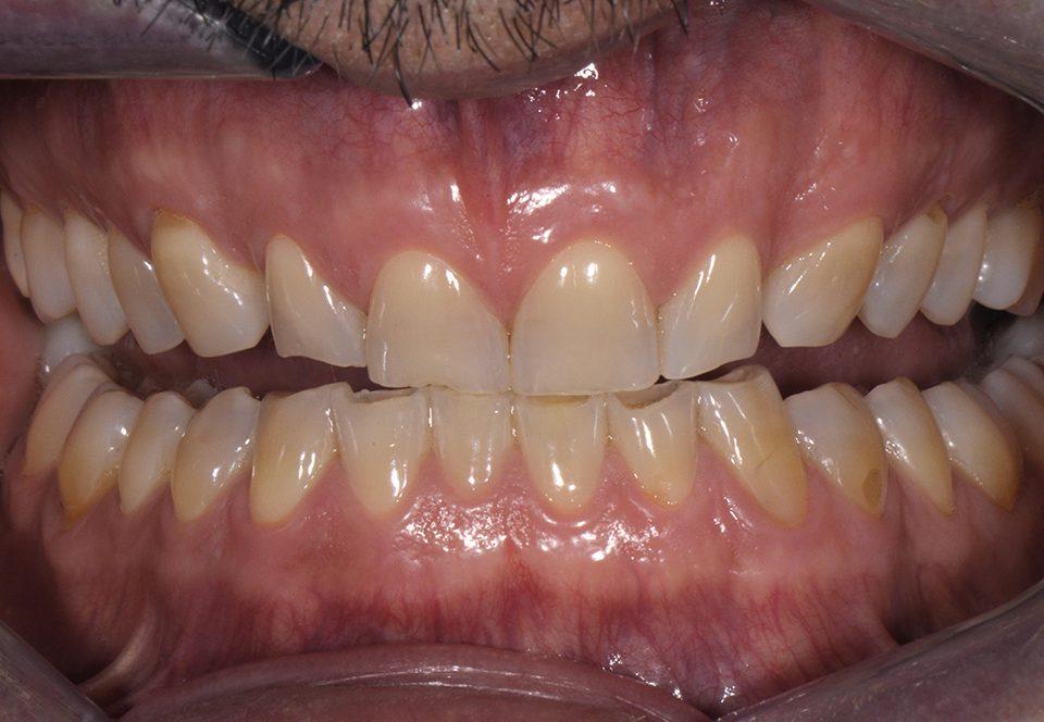 Giampaolo Londero dentatura abrasa Mira Design